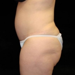 After Photo - Tummy Tuck - Case #2834 - Extended Abdominoplasty with Liposuction of Abdomen, Waist, Flanks and Dorsal Roll - Lateral View