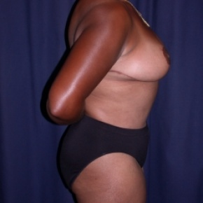 After Photo - Tummy Tuck - Case #2743 - Mommy Make Over: Tummy Tuck and Bilateral Breast Reduction - Lateral View