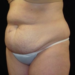 Before Photo - Tummy Tuck - Case #2835 - Extended Abdominoplasty with Liposuction of Abdomen, Waist, and Flanks - Posterior Oblique View