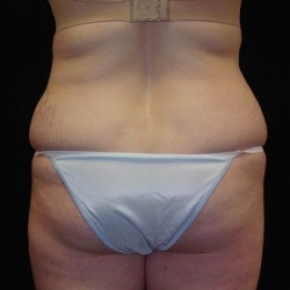 Before Photo - Tummy Tuck - Case #2835 - Extended Abdominoplasty with Liposuction of Abdomen, Waist, and Flanks - Worm's Eye View