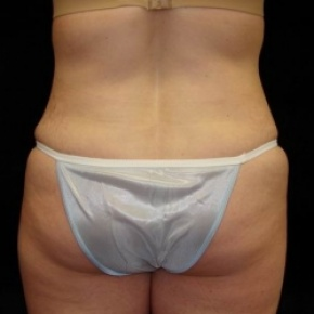 After Photo - Tummy Tuck - Case #2835 - Extended Abdominoplasty with Liposuction of Abdomen, Waist, and Flanks - Worm's Eye View