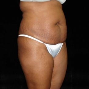 Before Photo - Tummy Tuck - Case #2836 - Full Abdominoplasty with Liposuction of Abdomen, Waist, Flanks, Dorsal Roll with Fat Grafting to Buttocks - Posterior View
