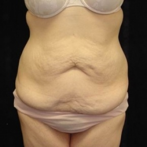 Before Photo - Tummy Tuck - Case #2838 - Circumfrential Abdominoplasty with Liposuction of Abdomen, Waist, and Flanks - Frontal View
