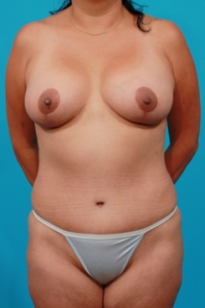 After Photo - Tummy Tuck - Case #2490 - Mommy Makeover - Frontal View