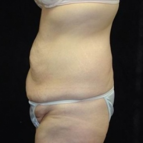 Before Photo - Tummy Tuck - Case #2838 - Circumfrential Abdominoplasty with Liposuction of Abdomen, Waist, and Flanks - Lateral View