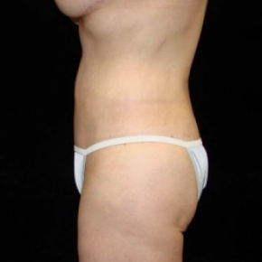 After Photo - Tummy Tuck - Case #2838 - Circumfrential Abdominoplasty with Liposuction of Abdomen, Waist, and Flanks - Lateral View