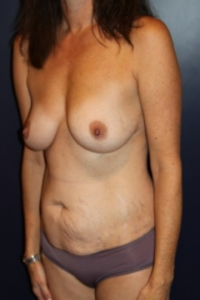 Before Photo - Tummy Tuck - Case #2856 - Natural Proportional Breast Augmentation Through Tummy Tuck Incision - Oblique View