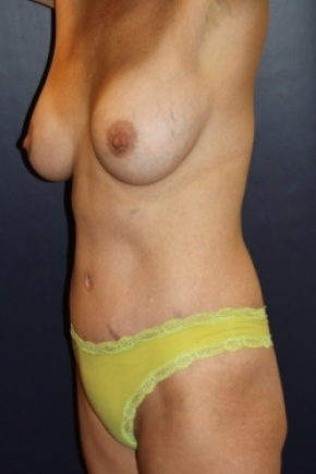 After Photo - Tummy Tuck - Case #2856 - Natural Proportional Breast Augmentation Through Tummy Tuck Incision - Oblique View