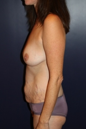 Before Photo - Tummy Tuck - Case #2856 - Natural Proportional Breast Augmentation Through Tummy Tuck Incision - Lateral View