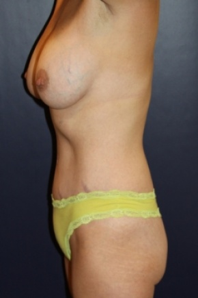 After Photo - Tummy Tuck - Case #2856 - Natural Proportional Breast Augmentation Through Tummy Tuck Incision - Lateral View