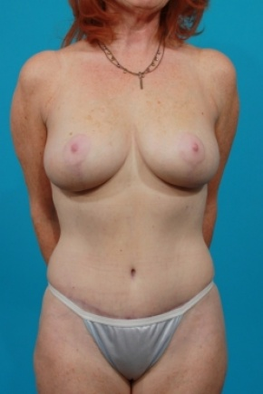 After Photo - Tummy Tuck - Case #2887 - Mommy Makeover - Frontal View