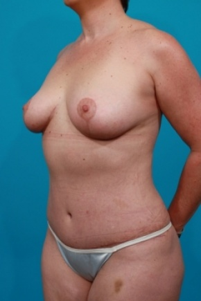 After Photo - Tummy Tuck - Case #2888 - Mommy Makeover - Oblique View