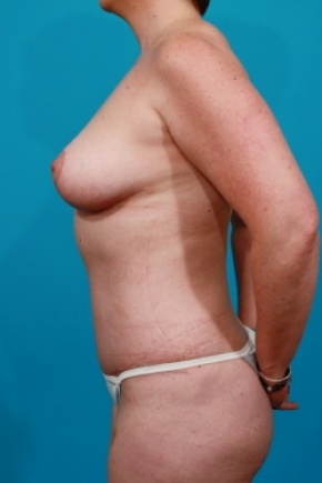 After Photo - Tummy Tuck - Case #2888 - Mommy Makeover - Lateral View