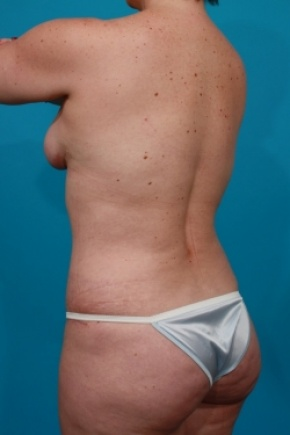 After Photo - Tummy Tuck - Case #2888 - Mommy Makeover - Posterior Oblique View