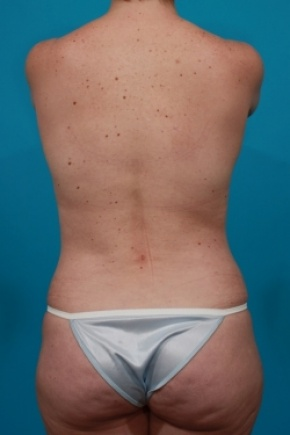After Photo - Tummy Tuck - Case #2888 - Mommy Makeover - Posterior View