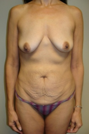 Before Photo - Tummy Tuck - Case #2897 - Mommy Makeover - Frontal View