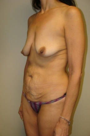 Before Photo - Tummy Tuck - Case #2897 - Mommy Makeover - Lateral View
