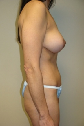 After Photo - Tummy Tuck - Case #2897 - Mommy Makeover - Posterior Oblique View
