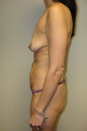 Before Photo - Tummy Tuck - Case #2897 - Mommy Makeover - Posterior View