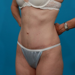 After Photo - Tummy Tuck - Case #2899 - Oblique View