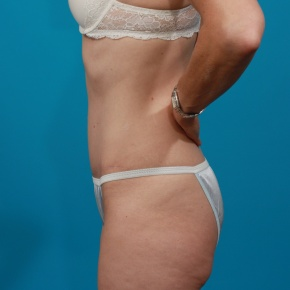 After Photo - Tummy Tuck - Case #2899 - Lateral View