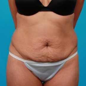 Before Photo - Tummy Tuck - Case #2526 - Extended Abdominoplasty - Frontal View