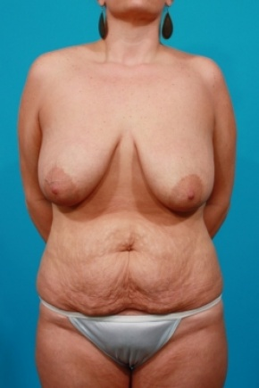 Before Photo - Tummy Tuck - Case #2902 - Mommy Makeover: Breast Reduction & Tummy Tuck - Frontal View