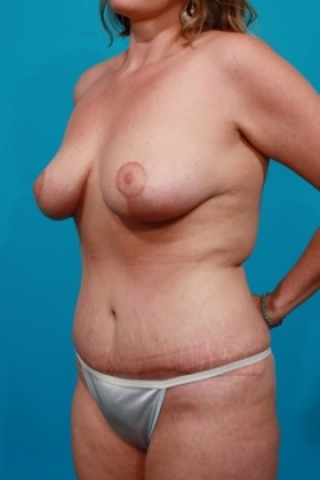 After Photo - Tummy Tuck - Case #2902 - Mommy Makeover: Breast Reduction & Tummy Tuck - Oblique View