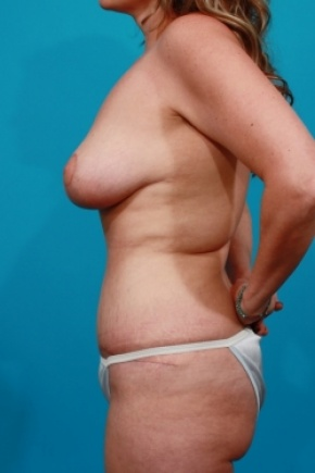 After Photo - Tummy Tuck - Case #2902 - Mommy Makeover: Breast Reduction & Tummy Tuck - Lateral View