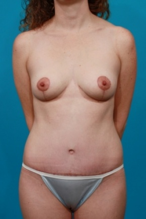 After Photo - Tummy Tuck - Case #2904 - Mommy Makeover:  Breast Lift & Tummy Tuck - Frontal View