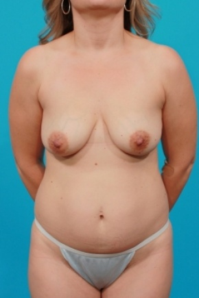 Before Photo - Tummy Tuck - Case #2952 - Mommy Makeover - Frontal View