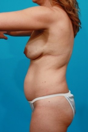 Before Photo - Tummy Tuck - Case #2952 - Mommy Makeover - Lateral View