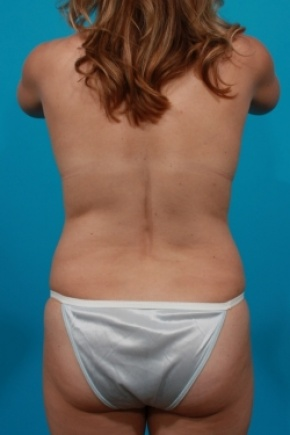 Before Photo - Tummy Tuck - Case #2952 - Mommy Makeover - Posterior View