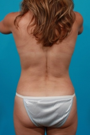 After Photo - Tummy Tuck - Case #2952 - Mommy Makeover - Posterior View
