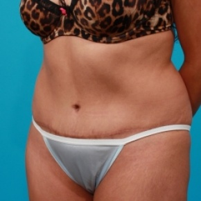 After Photo - Tummy Tuck - Case #2526 - Extended Abdominoplasty - Oblique View