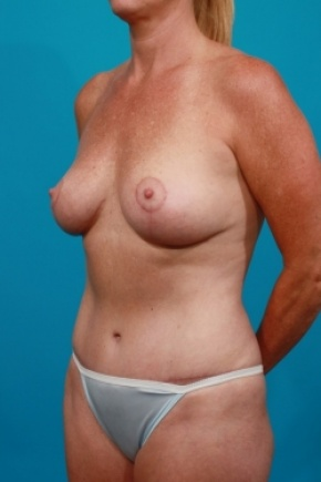 After Photo - Tummy Tuck - Case #2958 - Mommy Makeover - Oblique View
