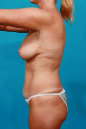 Before Photo - Tummy Tuck - Case #2958 - Mommy Makeover - Lateral View