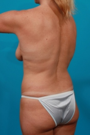 Before Photo - Tummy Tuck - Case #2958 - Mommy Makeover - Posterior Oblique View