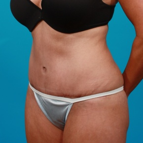 After Photo - Tummy Tuck - Case #2964 - Tummy Tuck & Flank Liposuction - Oblique View