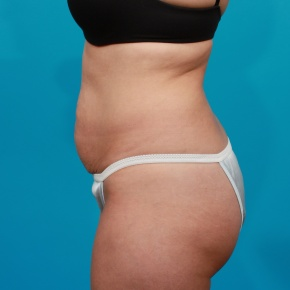 Before Photo - Tummy Tuck - Case #2964 - Tummy Tuck & Flank Liposuction - Lateral View