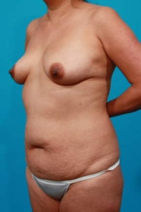 Before Photo - Tummy Tuck - Case #2490 - Mommy Makeover - Oblique View