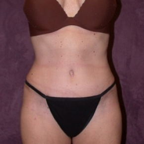 After Photo - Tummy Tuck - Case #2759 - Tummy tuck with liposuction of hips - Frontal View