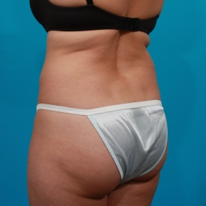 Before Photo - Tummy Tuck - Case #2964 - Tummy Tuck & Flank Liposuction - Posterior Oblique View