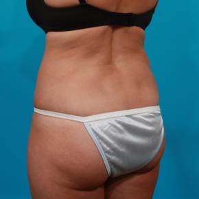After Photo - Tummy Tuck - Case #2964 - Tummy Tuck & Flank Liposuction - Posterior Oblique View