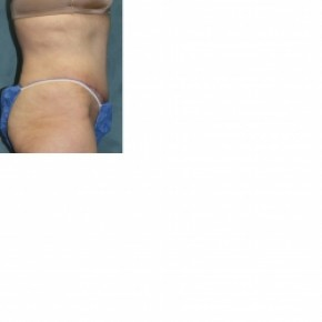 After Photo - Tummy Tuck - Case #3434 - Abdominoplasty - Oblique View