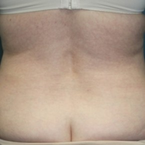 Before Photo - Tummy Tuck - Case #3434 - Abdominoplasty - Lateral View