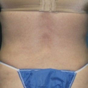 After Photo - Tummy Tuck - Case #3434 - Abdominoplasty - Lateral View