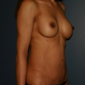 After Photo - Tummy Tuck - Case #3446 - Tummy tuck with breast augmentation - Oblique View
