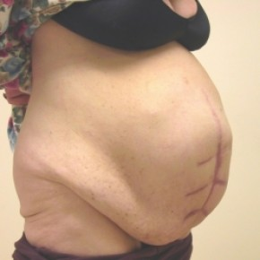 Before Photo - Tummy Tuck - Case #3448 - Abdominoplasty with ventral hernia repair - Oblique View