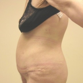 After Photo - Tummy Tuck - Case #3448 - Abdominoplasty with ventral hernia repair - Lateral View